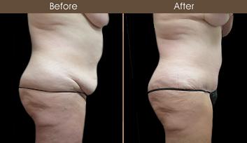 NY Tummy Tuck Results