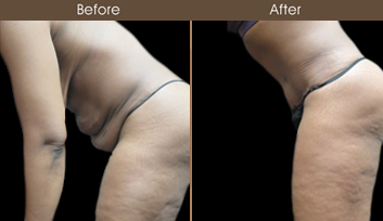 NY Abdominoplasty Before & After