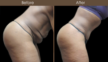 NY Abdominoplasty Results
