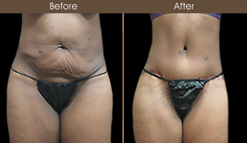 NY Tummy Tuck Surgery Before & After