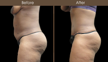 NY Tummy Tuck Surgery Results