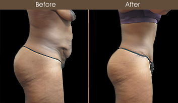 NY Abdominoplasty Before And After