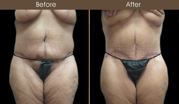 NY Abdominoplasty Surgery Before And After