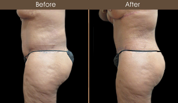 NY Abdominoplasty Surgery Before & After