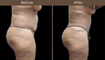 NY Abdominoplasty Surgery Results