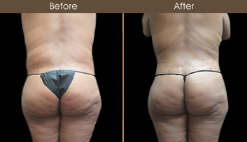 Tummy Tuck Results In NYC