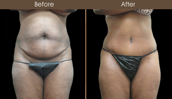 Tummy Tuck Results In New York