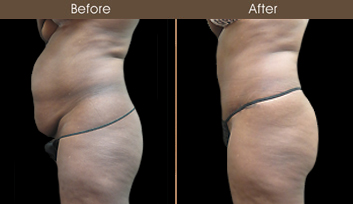 Tummy Tuck Results In New York City