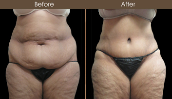 Tummy Tuck Surgery Results In NYC