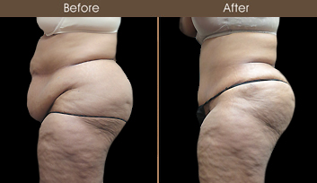 Tummy Tuck Surgery Results In New York