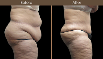 Tummy Tuck Surgery Results In New York City