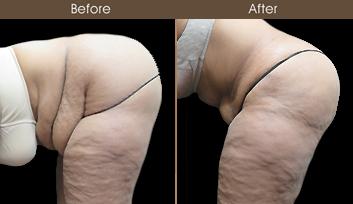 Tummy Tuck Surgery Results In NY