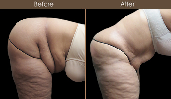 Abdominoplasty Results In NYC