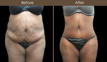 Abdominoplasty Results In New York