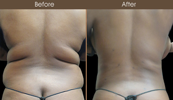 Gluteal Fat Transfer Before And After