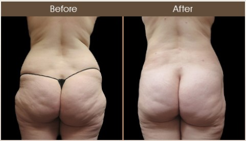 Before And After Gluteal Fat Transfer