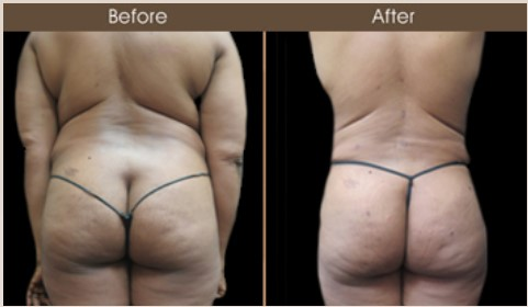 Gluteal Fat Transfer Treatment Before And After