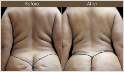 Gluteal Fat Grafting Before & After