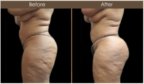 Gluteal Fat Grafting Before And After