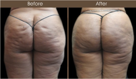 Before And After Gluteal Fat Transfer Treatment