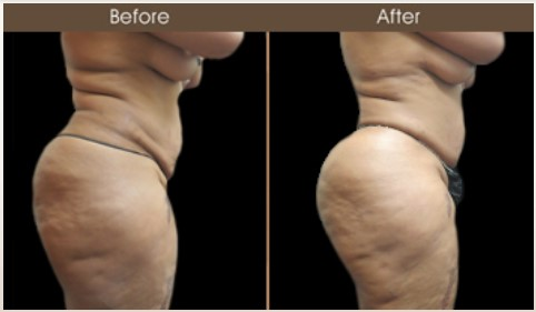 Before & After Gluteal Fat Transfer Treatment