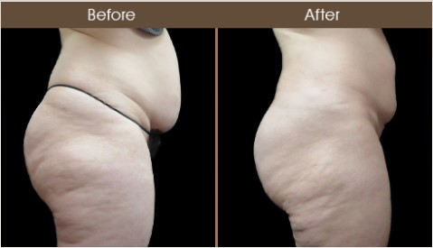 Before & After Gluteal Fat Transfer