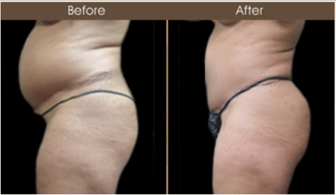 Gluteal Fat Transfer Treatment Results