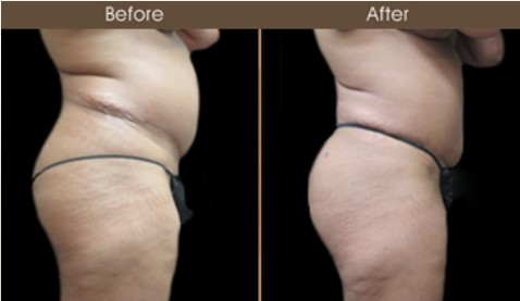 Gluteal Fat Transfer Treatment Before & After