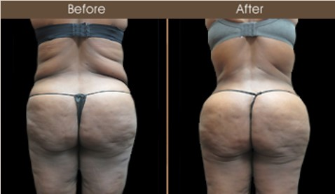 Gluteal Fat Grafting Results