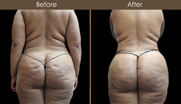 Gluteal Fat Grafting Treatment Before And After