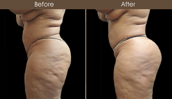 Gluteal Fat Grafting Treatment Results