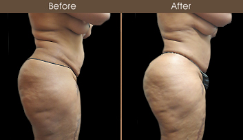 Gluteal Fat Grafting Treatment Before & After