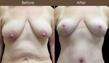 Before And After Mommy Makeover Treatment