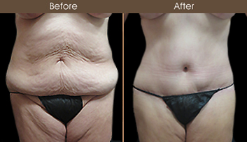 Mommy Makeover Surgery Results In New York City