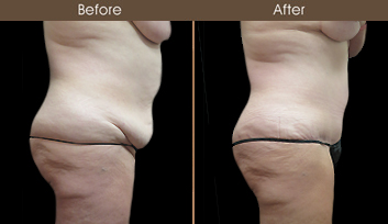 Mommy Makeover Surgery Results In NY