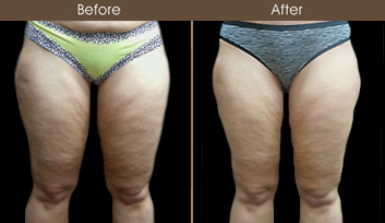 Before & After Thigh Lift Surgery