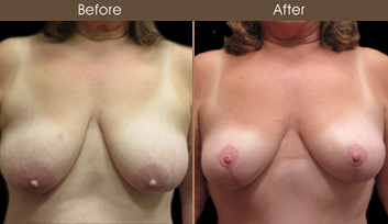 NYC Mastopexy Surgery Before And After