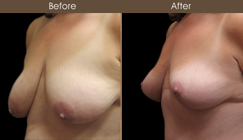 Before And After NYC Mastopexy Surgery