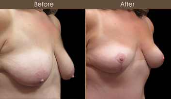 NYC Mastopexy Surgery Before & After