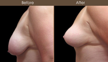 Before & After NYC Mastopexy Surgery