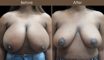 Before And After New York Breast Reduction