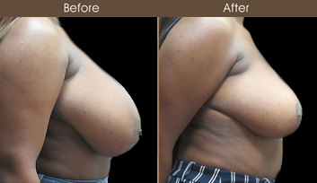 New York Breast Reduction Surgery Before And After