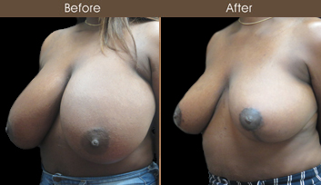 New York Breast Reduction Surgery Before & After
