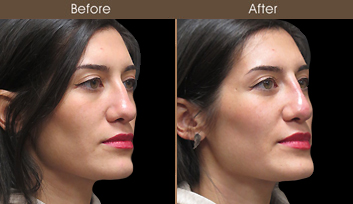 Liquid Rhinoplasty Before And After