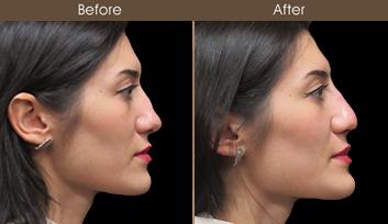 Liquid Rhinoplasty Before & After