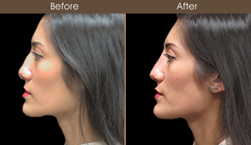 Before And After Liquid Rhinoplasty