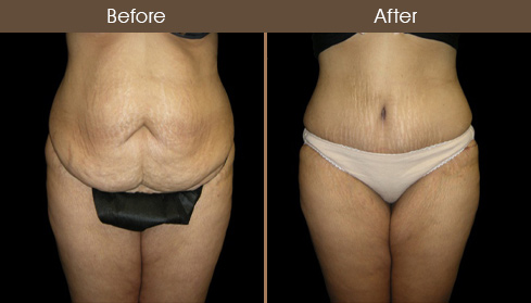 Tummy Tuck Before And After Image