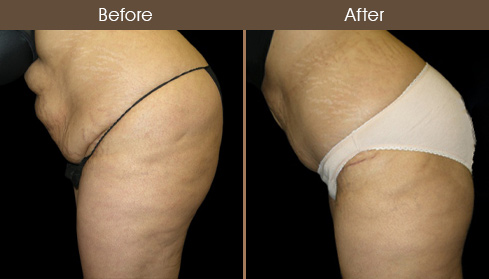 Tummy Tuck Results Image
