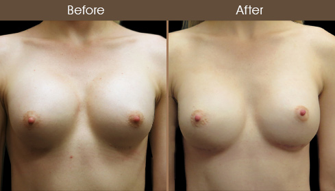 Breast Implant Surgery Before & After