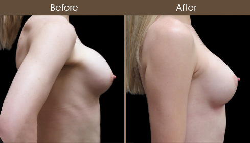 Before And After Breast Implant Surgery